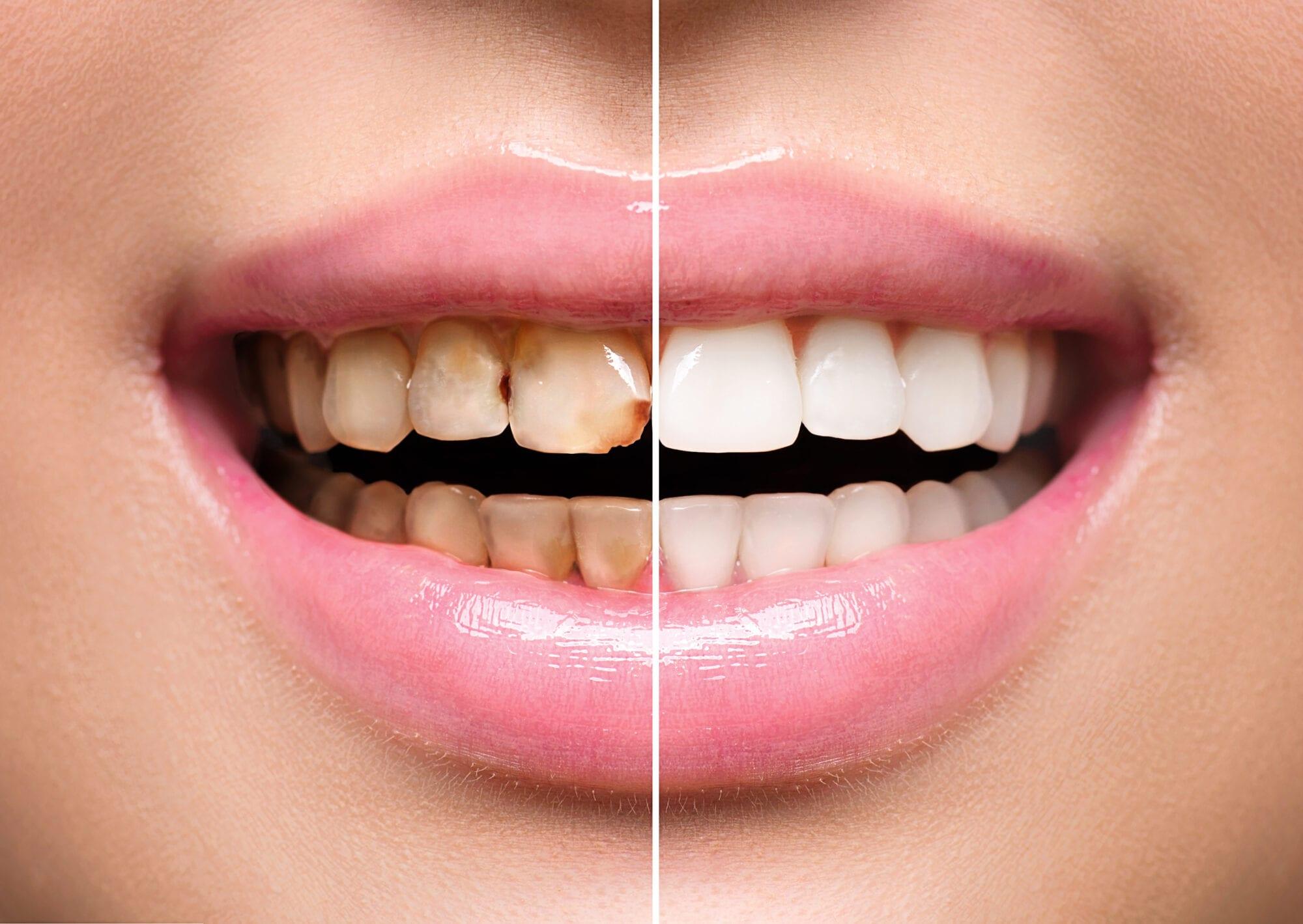 Teeth Whitening at 32 Pearls Seattle Dentist