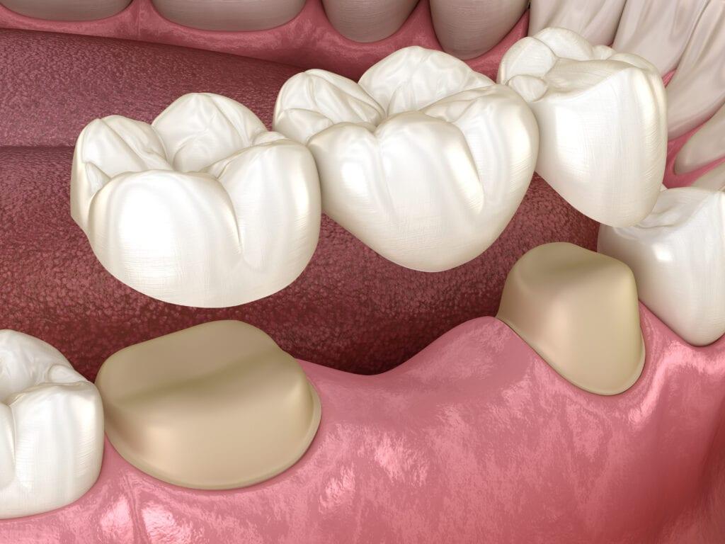 dental bridges tacoma